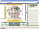 Screenshot of the simulation MRI